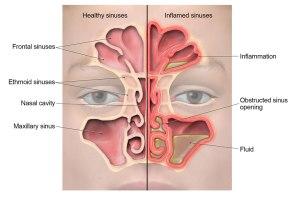 sinusitis-lg